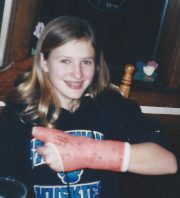 Jess showing off her broken thumb (playing B.B.) 2003